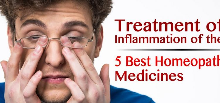 Treatment of Inflammation of the Eye:  5 Best Homeopathic Medicines
