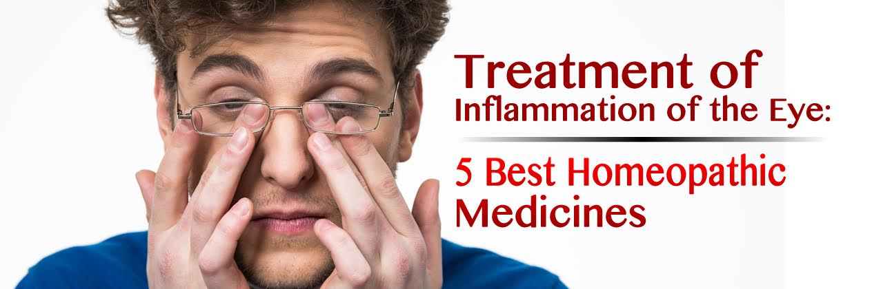 Treatment of Inflammation of the Eye: 5 Best Homeopathic