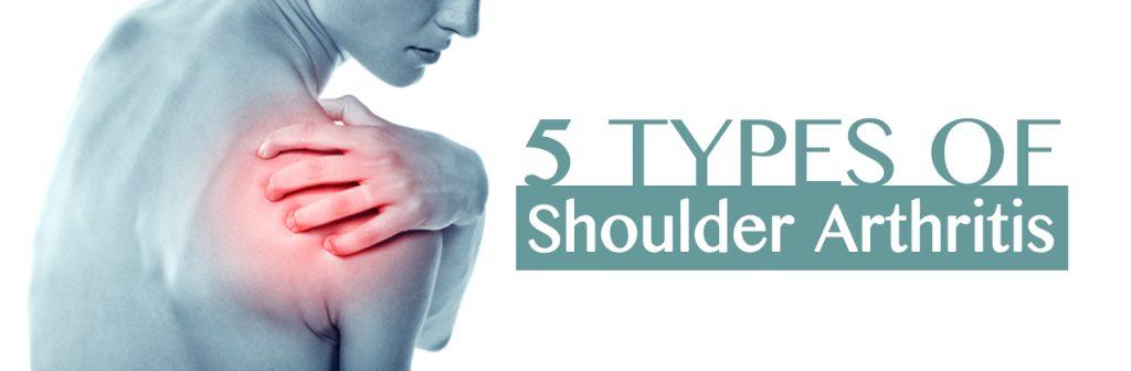 Jul-Meyer-Shoulder-Arthritis-header