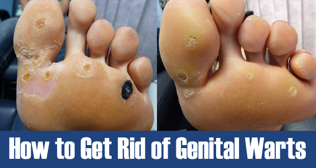 How to Get Rid of Genital Warts? 6 Top Home Treatment for Genital