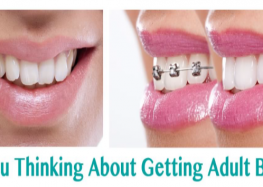 Are You Thinking About Getting Adult Braces in Wisconsin?